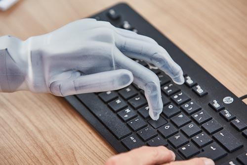 i-Limb Quantum Handprothese